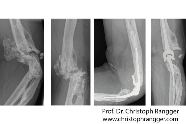Ellbogenprothese nach Schussverletzung - Prof. Dr. Christoph Rangger