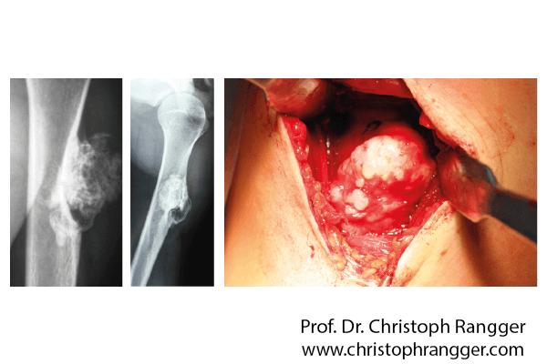 Gutartiger Knorpeltumor Oberarm - Prof. Dr. Christoph Rangger
