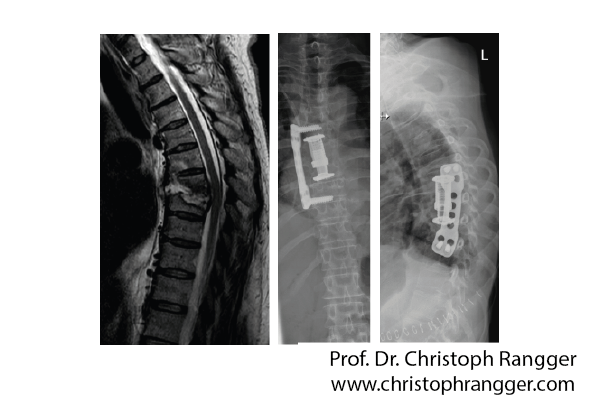 Infektion Bandscheibe Brustwirbelsäule - Prof. Dr. Christoph Rangger