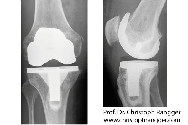 Künstliches Kniegelenk Oberflächenersatz