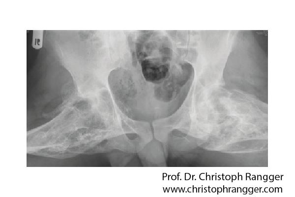 Knöcherne Hüftgelenksversteifung vorher - Prof. Dr. Christoph Rangger