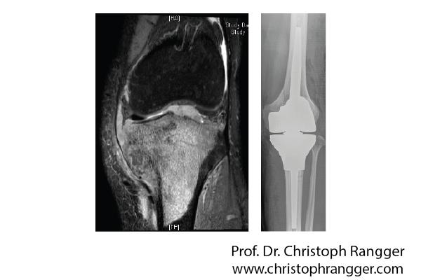 Knieprothese nach Knochentumor bösartig