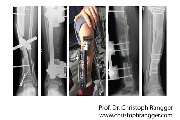 Knochentransport bei Knocheneiterung - Prof. Dr. Christoph Rangger