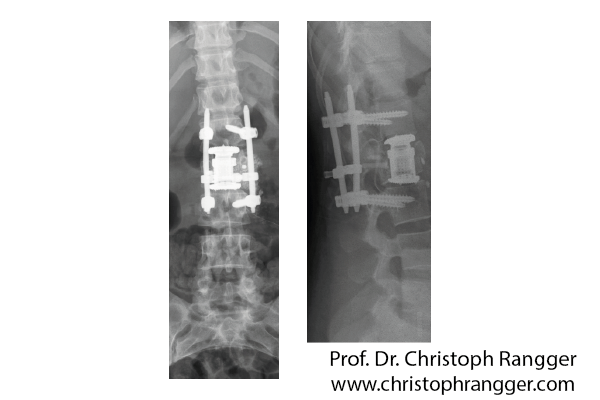 Komplizierter Bruch 2. Lendenwirbel - Prof. Dr. Christoph Rangger