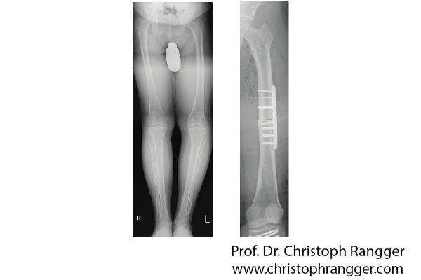 Korrektur Beinachse O-Bein - Prof. Dr. Christoph Rangger