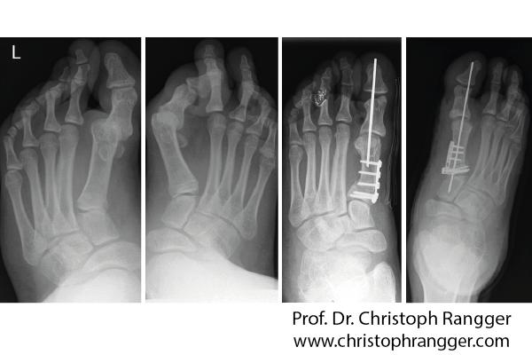Korrektur Fußdeformitäten - Prof. Dr. Christoph Rangger
