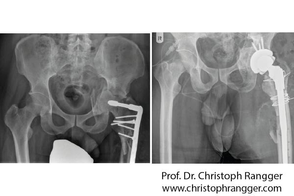 Korrektur von fehlerhaften Operationen - Prof. Dr. Christoph Rangger