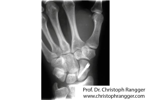 Perkutane Schraube Kahnbeinbruch - Prof. Dr. Christoph Rangger