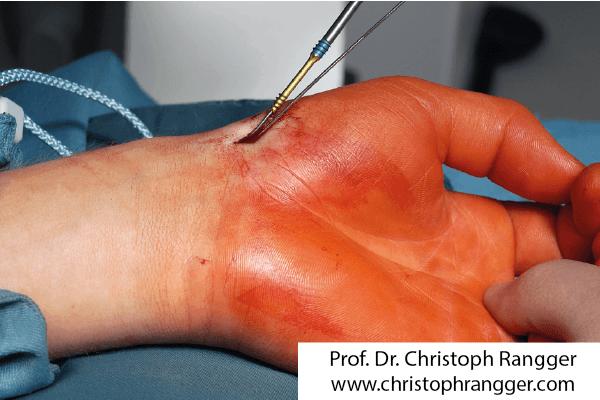 Perkutane Verschraubung Kahnbeinbruch Hand
