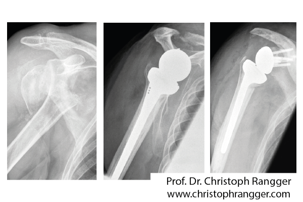 Schulterprothese nach Bruch Oberarmkopf
