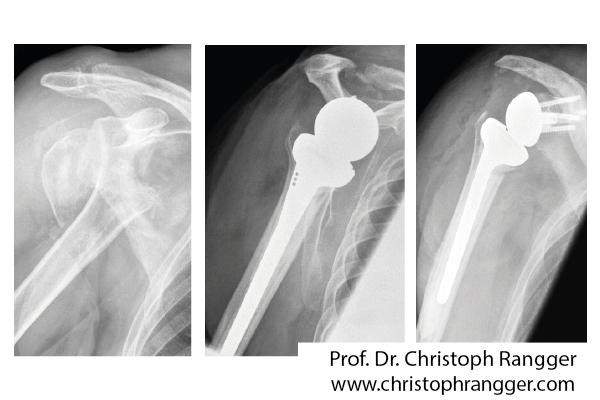 Schulterprothese nach Bruch Oberarmkopf - Prof. Dr. Christoph Rangger