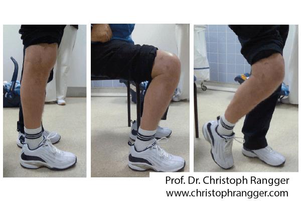 Umwandlung versteiftes Knie in bewegliches Knie