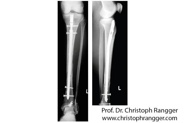 Unterschenkelbruch Marknagel - Prof. Dr. Christoph Rangger
