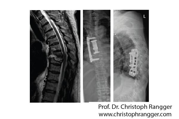 Инфекция межпозвоночного диска грудного отдела позвоночника