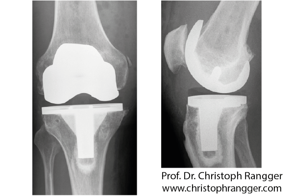 Искусственный коленный сустав, поверхностная замена