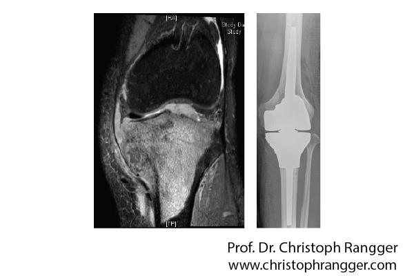 Коленный протез после злокачественной опухоли кости