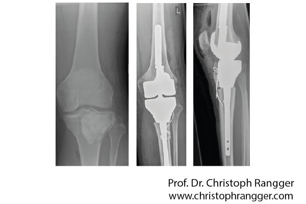 Коленный протез после опухоли кости