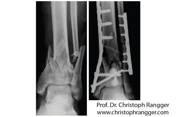 Комплексный перелом большеберцовой кости и голеностопного сустава