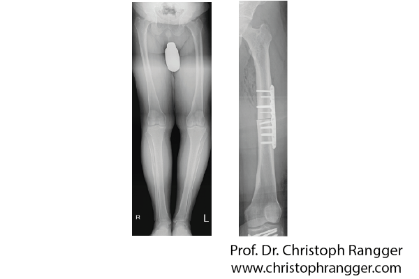 Коррекция оси нижних конечностей при варусной деформации ног