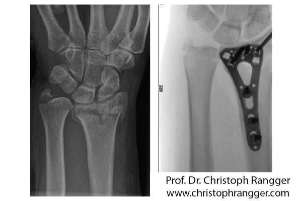 Перелом лучевой кости, операция с пластиной