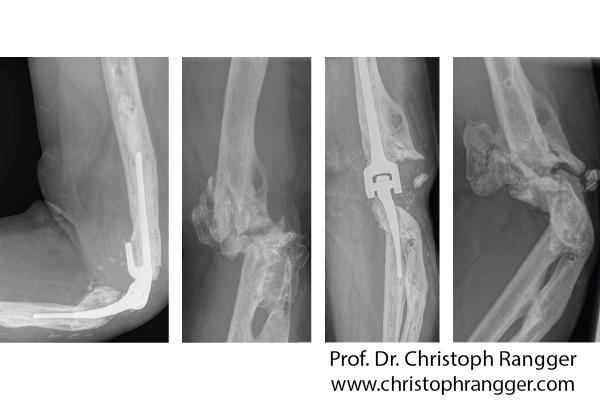 Перелом плечевой кости в области локтевого сустава