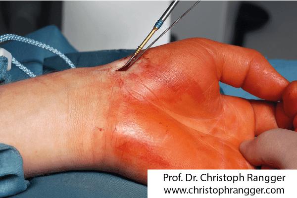 Подкожный остеосинтез при переломе ладьевидной кости кисти