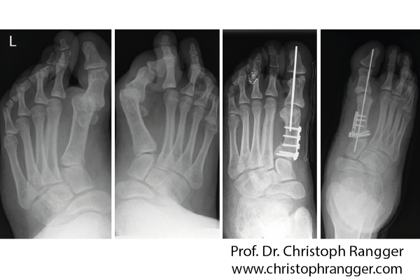 تصحيح التشويه الخلقي لعظام القدم