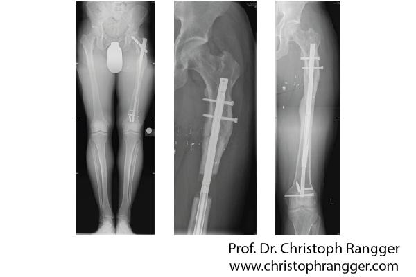 تطويل العظام بطريقة المسمار لطول 5 سنتميترات