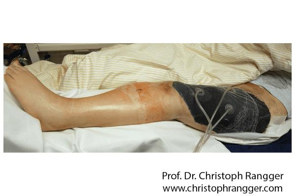 معالجة الأنسجة اللينة عبر مضخة الفراغ الطبية